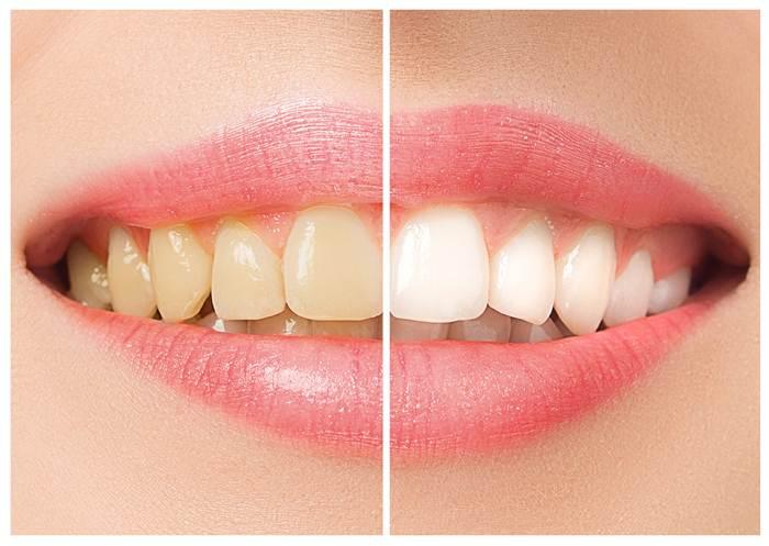 Urgence Dentaire Nyon