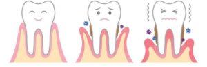 parodontologie chavannes de bogis vaud la cote